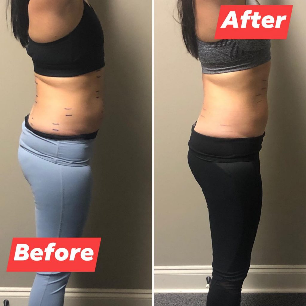 Abdominal before and after
