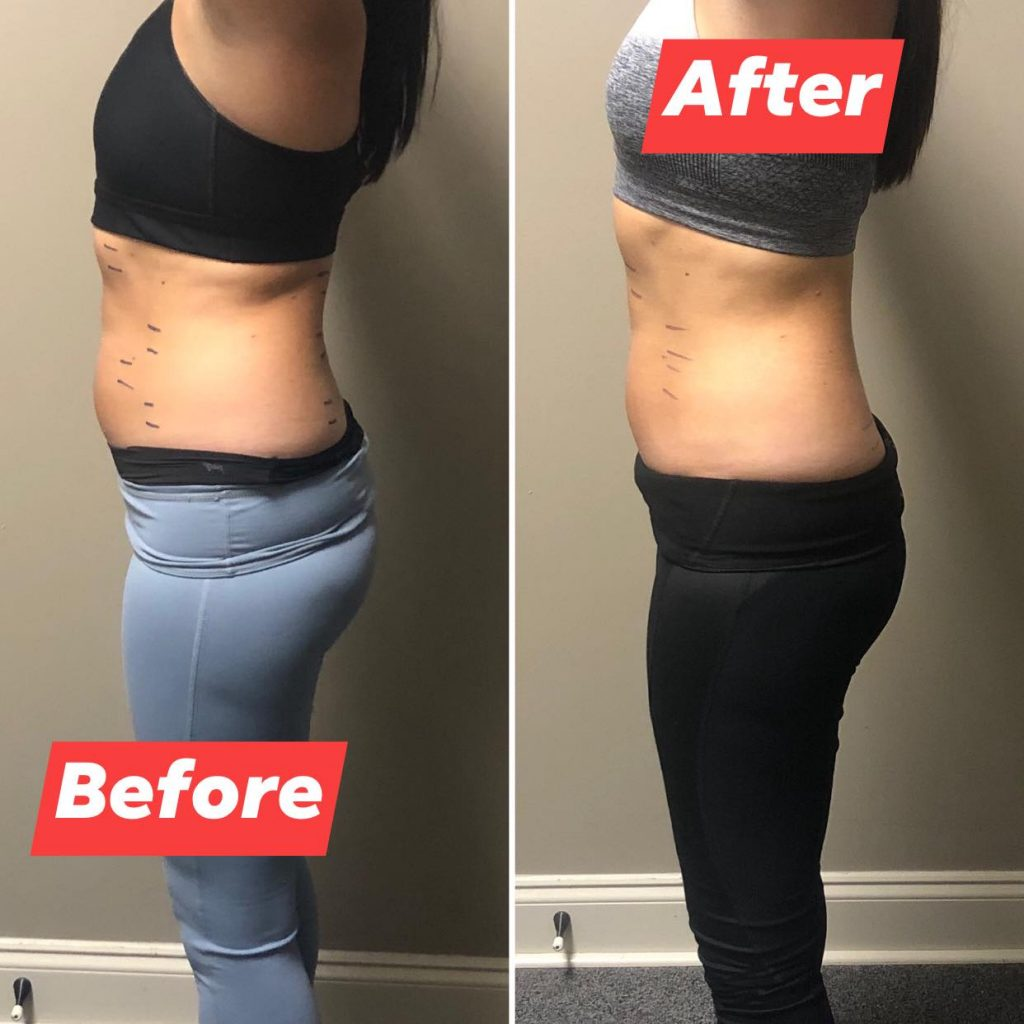 Abdominal before and after2